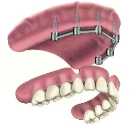upper_implant_denture3